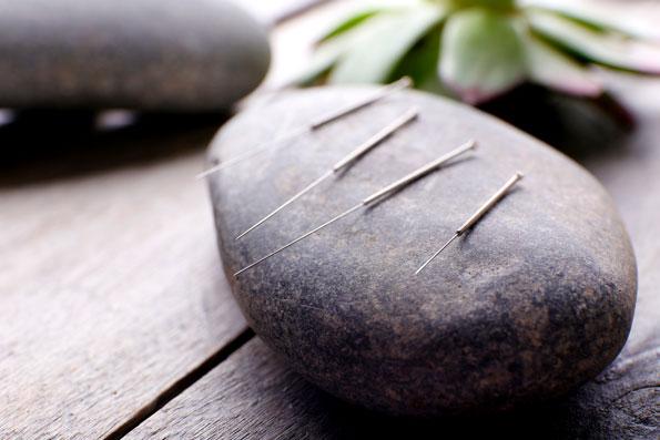 Heilpraktikerin Bad Wörishofen, Akupunktur, Chinesische Medizin